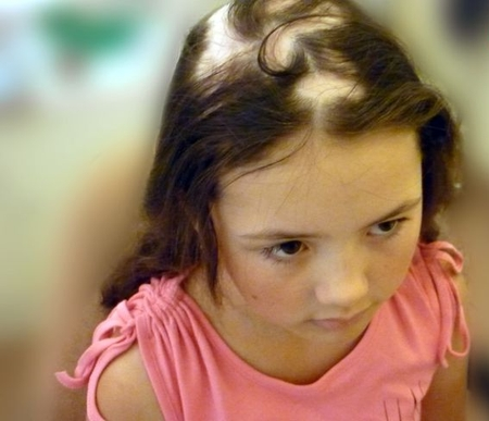 Как лечить алопецию у ребенка