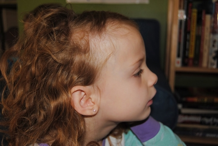 очаговая алопеция у детей