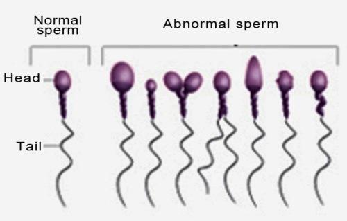 chto-znachit-patologicheskie-formi-spermatozoidov