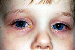 чем лечить конъюнктивит у ребенка
