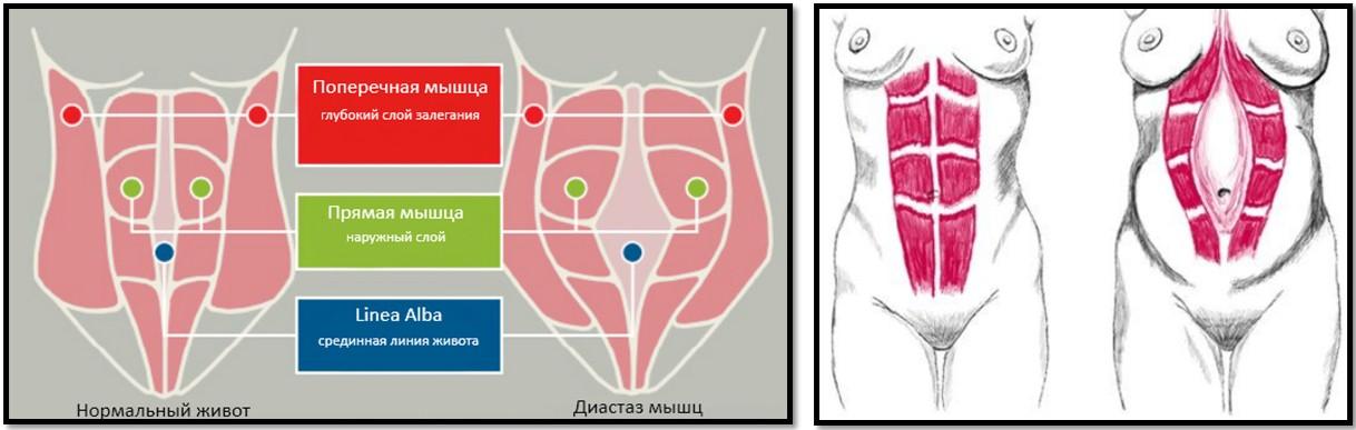 Что такое диастаз мышц живота