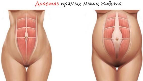 Как выглядит диастаз в разрезе