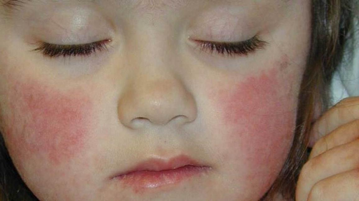 красные щеки у ребенка чем помазать