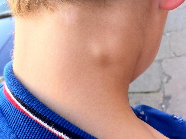 Подчелюстной лимфаденит лечение у детей
