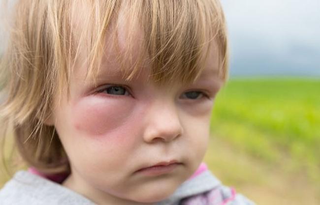 Отек Квинке симптомы у детей, лечение, первая помощь