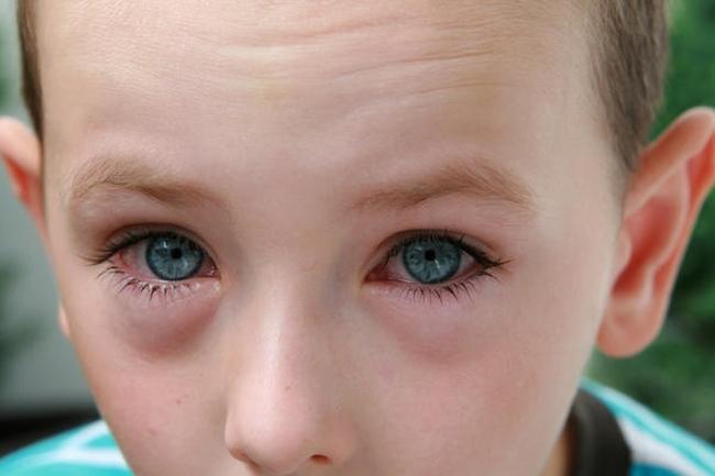 У ребенка отек под глазами что делать
