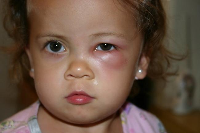 Шишка под глазом у ребенка. Шишка у ребенка. Zdorovyj 879