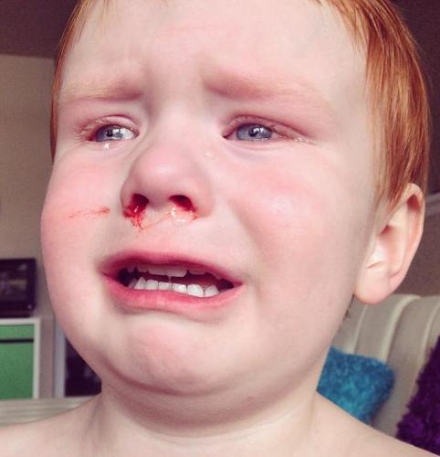 почему у ребенка из носа часто идет кровь