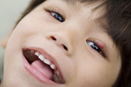 у ребенка появился ячмень на глазу что делать