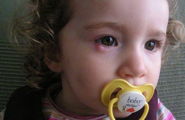 Халязион у ребенка на верхнем или нижнем веке - лечение