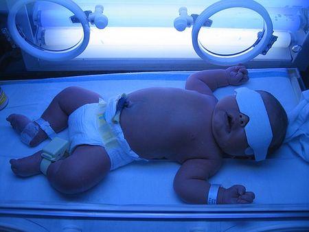 желтуха у новорожденных причины лечение